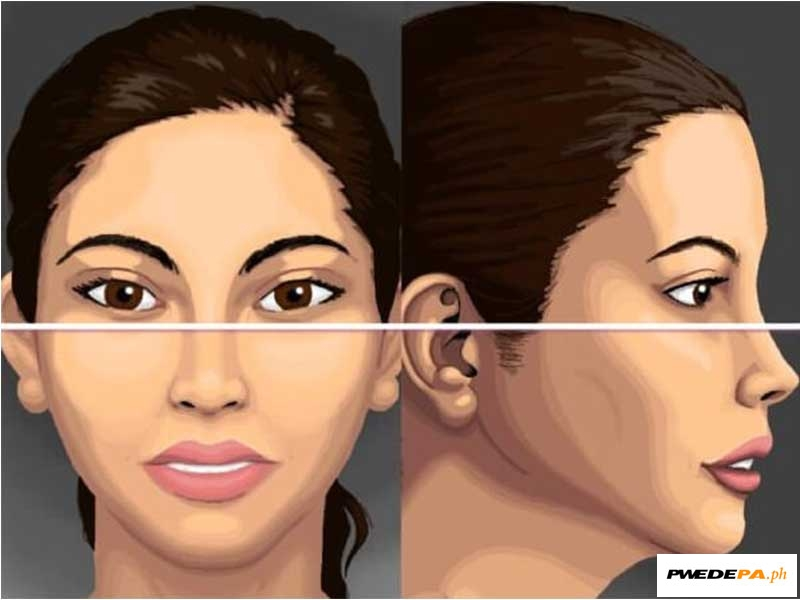 Surface Anatomy And Nasofacial Analysis